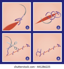 Surgery Suture Loop Technique in Case of Aponeurosis Abdominal in Four Stages - Needle Thread Scissors Loop Suture Incision Flesh Skin Close to Real Colors - Infographic Gradient Style