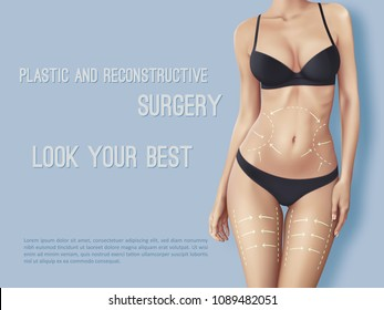 Surgical lines on beautiful woman's body. Closeup of female slim fit body with white marks on skin which show places for plastic surgery operation. Girl in perfect sexy body shape in dark underwear
