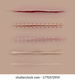 Surgical sutures healing stages. Realistic bloody wound and stitch closeup texture. Scars, stitched gash different curing steps, medicine vector isolated set