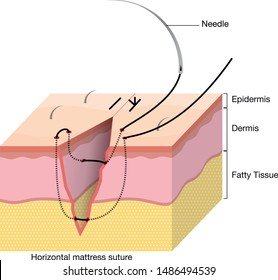 Surgical Suturing Techniques, Suturing Techniques, Horizontal mattress suture