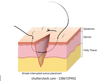 Surgical Suturing Techniques, Suturing Techniques, Simple interrupted suture placement