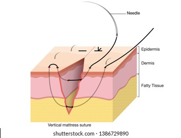 Surgical Suturing Techniques, Suturing Techniques, Vertical mattress suture