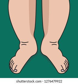 Swelling of shins and feet, woman with swollen legs. vector illustration