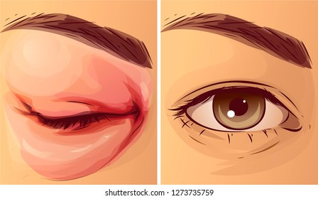 Swollen eye, before-after. Vector illustration.