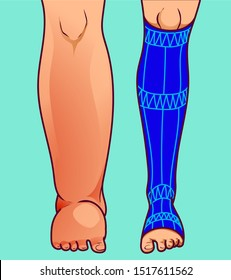 Swollen feet, before-after. Foot in protective sock. Vector illustration