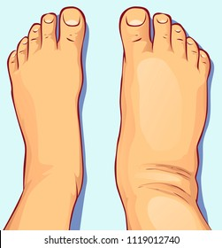 Swollen feet, vector illustration
