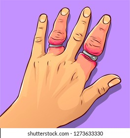 Swollen hand and rings, vector illustration