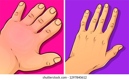 Swollen hands, before-after. Vector illustration