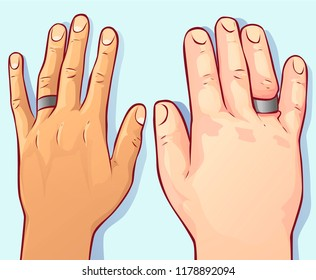 Swollen hands, vector illustration