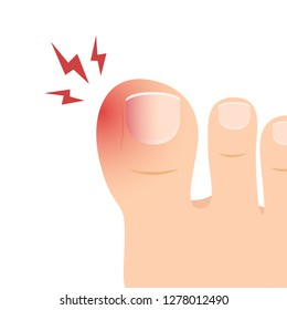 Swollen toe cartoon vector. free space for text. wallpaper. copy space.