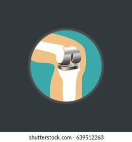 symbol of knee replacement, knee replacement logo vector icon design