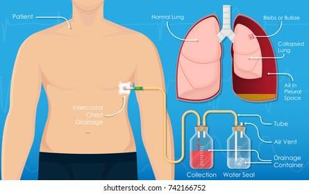 Pneumothorax drainage