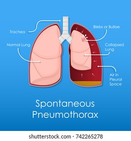 Symptom Spontaneous Iatrogenic Traumatic Pneumothorax Patient with Needle Aspiration Chest Intercostal Drainage Tube Treatment Care Medical Emergency Diagnosis X-Ray Collapsed Lung