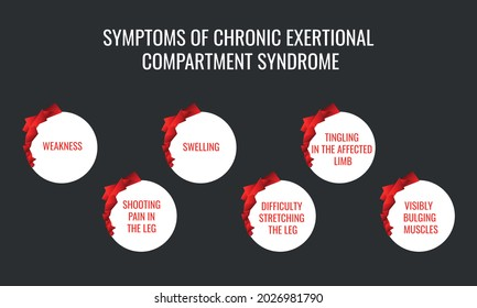 symptoms of Chronic exertional compartment syndrome. Vector illustration for medical journal or brochure.