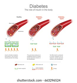 Symptoms of high blood sugar include frequent urination, increased thirst, and increased hunger. If left untreated, diabetes can cause many complications.Education info graphic. Vector design.
