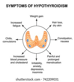 Hypothyroidism Images, Stock Photos & Vectors | Shutterstock