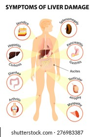 symptoms of liver damage. Human silhouette with internal organs. Vector illustration