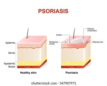 Symptoms of psoriasis. Normal skin and psoriasis. plaque psoriasis