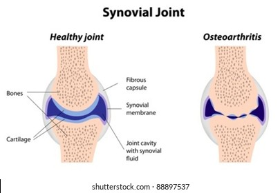 synovial joint - normal and osteoarthritic
