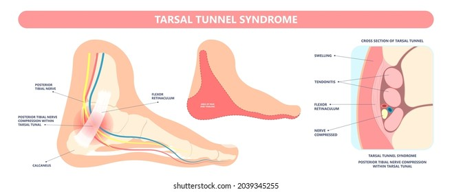 Tarsal tunnel syndrome flat feet flatfoot tibial tear running ankle bone tendon nerves pain foot compresses fallen arches vein cyst swollen spur carpal heel injury trauma torn inflamed adult