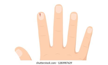 Royalty,Free Cutting Nail Cartoon Stock Images, Photos