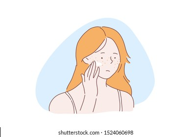 Teenage girl skincare problem concept. Woman with facial rash, lady applies cream, ointment on skin with acne pimples, covers freckles with foundation base, concealer. Simple flat vector