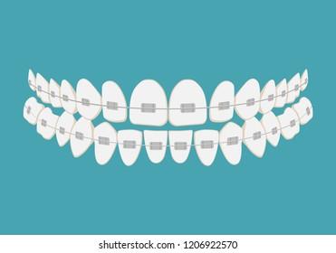 Teeth with braces. Alignment of bite of teeth, dental row with with braces, Dental braces. Vector illustration.