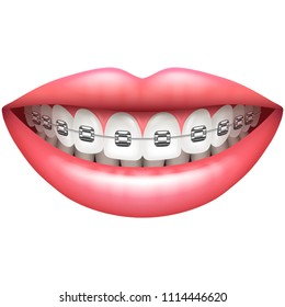 Teeth with braces beautiful woman smile isolated on white vector illustration