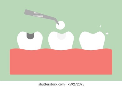 teeth cartoon vector flat style for design - tooth amalgam filling with dental tools