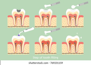 teeth cartoon vector flat style for design - step of caries to tooth amalgam filling with dental tools, anatomy structure including the bone and gum