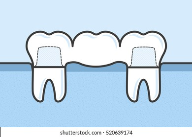 Teeth with dental bridge vector medical illustration in flat linework style