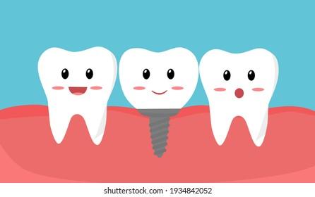 Teeth with dental implant cartoon in flat design. Tooth implant screw in gum.