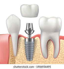 Teeth and dental implant realistic vector design of dentistry. 3d tooth, denture crown, jaw bones and healthy roots, implant screw and abutment, healthcare, dentist and orthodontist treatment