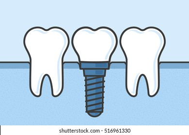 Teeth with dental implant vector illustration.
