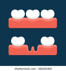 Teeth with Gum for Healthcare. Vector