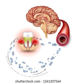 Teeth problems complications, Gum disease inflammation bacteria can enter in to the blood stream an affect brain. Periodontitis disease info poster on a white background