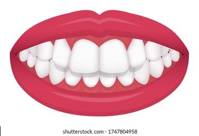 Teeth trouble ( bite type / crooked teeth ) vector illustration /Overbite (Back teeth)