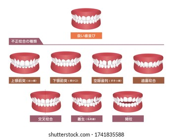 Teeth trouble ( bite type ) vector illustration set. translation: Normal bite, Overbite, Underbite, Excessive Spacing, Deep bite, Crossbite, Crowding, Open bite.