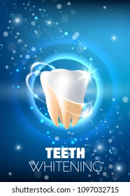 Teeth whitening concept vector realistic illustration. Tooth before and after whitening procedure on blue sparkling background. Professional teeth whitening ad design template.
