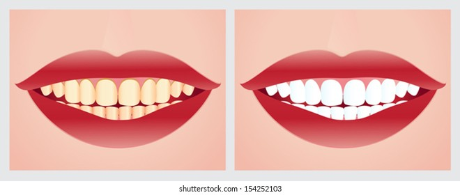 Teeth whitening. File is not flattened with labeled layers. Easy to add.