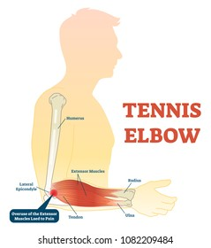Tennis elbow medical fitness anatomy vector illustration diagram with arm bones, joint and muscles. Overuse of extensor muscles leading to pain.