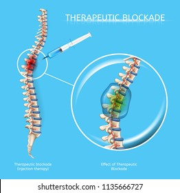 Therapeutic Blockage with Medications Injection to Damaged Spine Region Realistic Vector Scheme. Treatment of Painful Diseases of Human Musculoskeletal System with Medical Therapy Effects Illustration