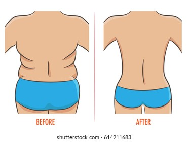 Thick and thin, overweight problem concept. Female torso with fat and lean shoulders, back and hips. Back before and after diet, fitness or liposuction. Vector illustration of woman rear, isolated