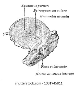 This illustration represents Inner Aspect of Temporal Bone at Birth, vintage line drawing or engraving illustration.