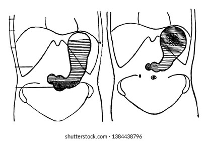 This illustration represents Stomach in a Bismuth-Laden Diet, vintage line drawing or engraving illustration.