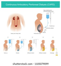 This is technical uses peritoneal cavity to transport dialysis fluid for Permeability a capillaries blood in a peritoneal cavity.
