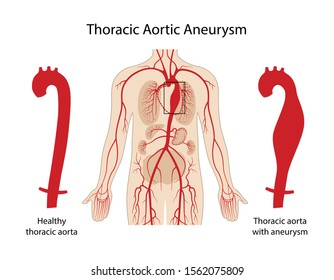 Thoracic aortic aneurysm. Arterial circulatory system. Healthy thoracic aorta and thoracic aorta with aneurysm. Vector illustration in flat style isolated on white background