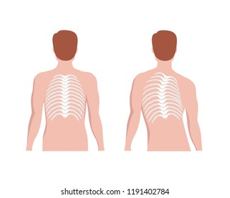 Thoracic Scoliosis on the thoracic spine and straight backbone concept vector illustration in flat design isolated on white background. Scoliosis medical infographic elements, male silhouette