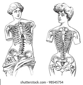 Thorax - Venus de Milo (left) and mannequin (right) / vintage illustrations from Die Frau als Hausarztin 1911