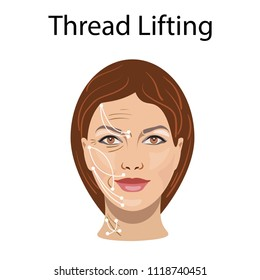 Thread lifting, vector illustration, before after effect